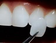 Facette céramique sur dent