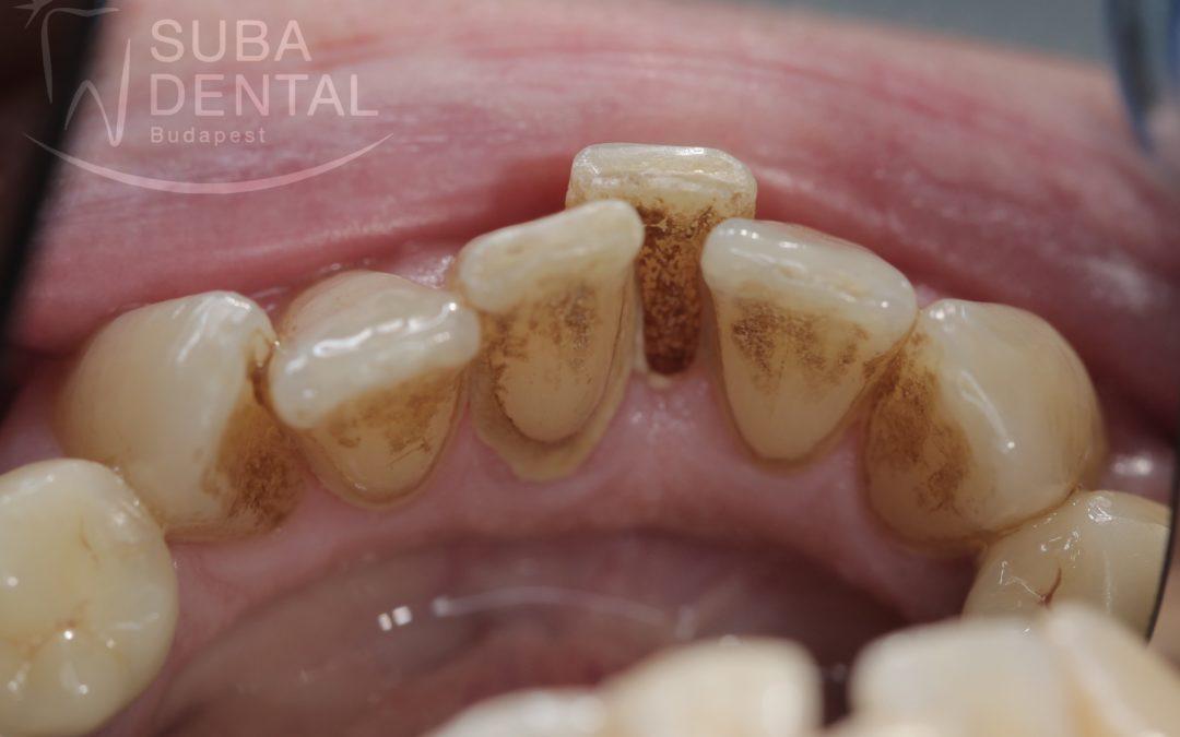 A fogkő eltávolításának fontossága