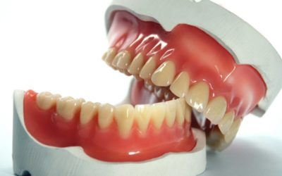 Fungal infection in patients wearing dentures