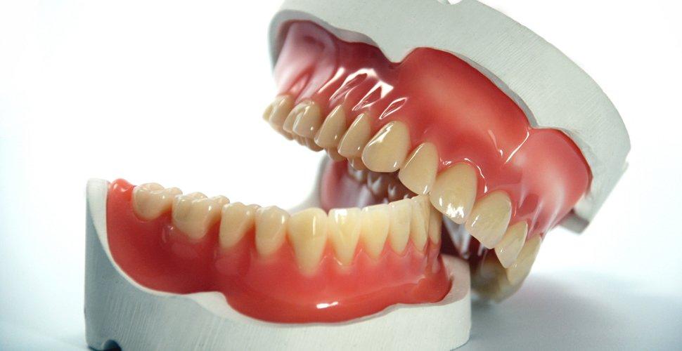 A műfogsort viselők szájüregi gombás fertőzése