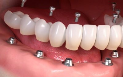 Screw-retained implant crowns