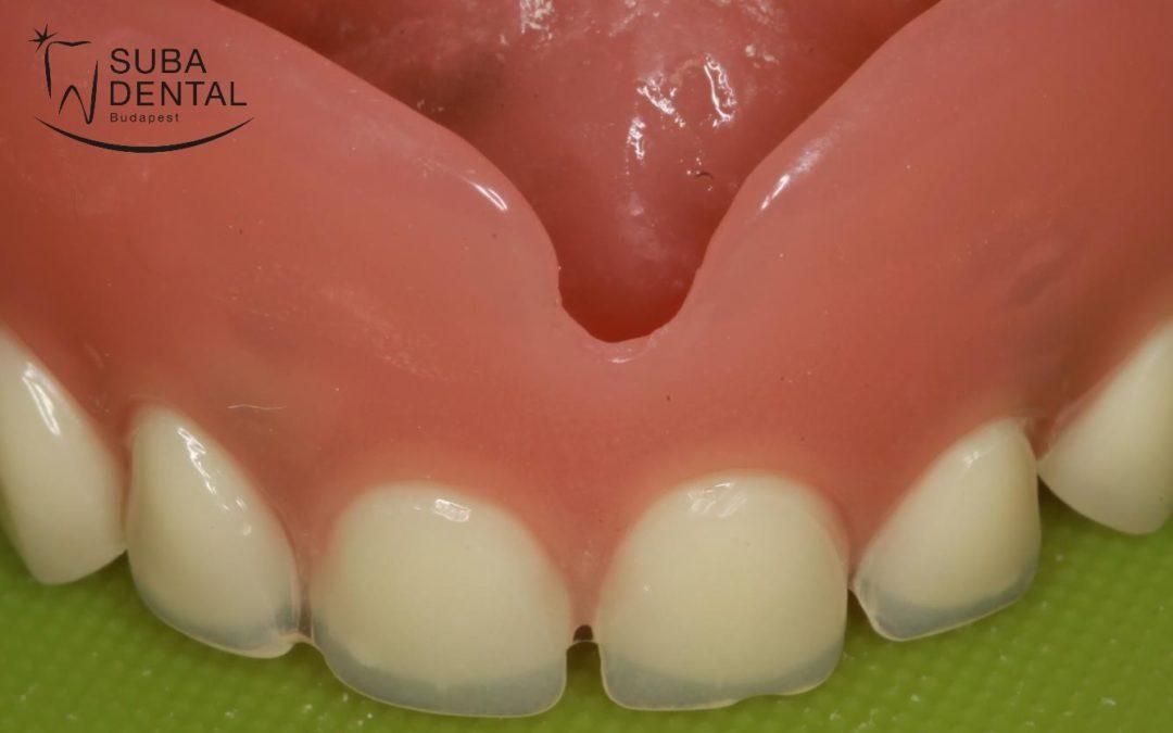 A kivehető fogsorok alábélelésének fontossága