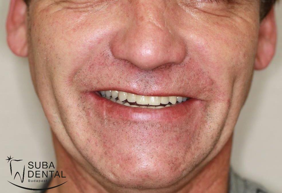 Ragasztható fémkerámia koronák saját fogakra és implantátumokra