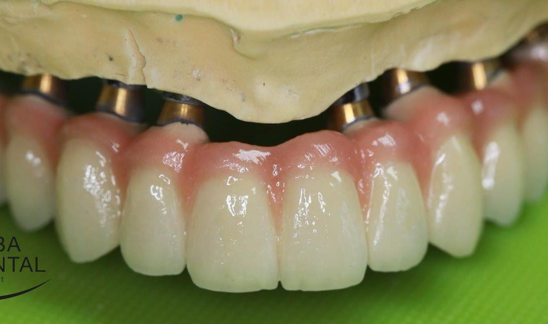 Az implantátumra készülő ragasztható korona vagy híd