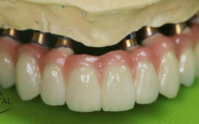 Cement-retained crowns or bridges intended for implants