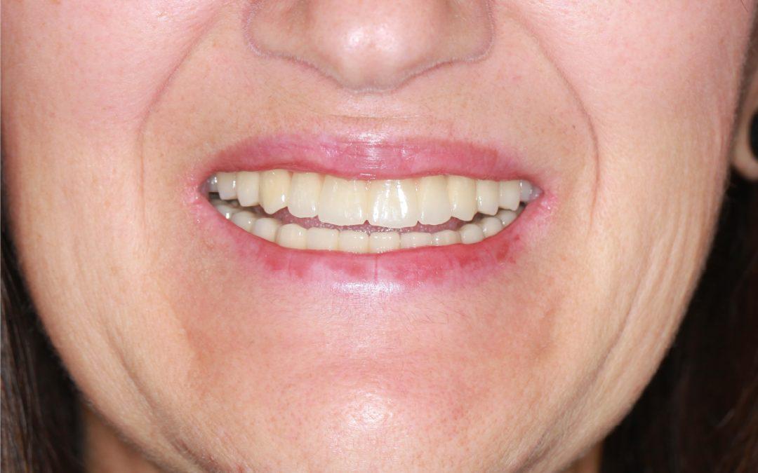 Alsó és felső ragasztható, fémkerámia körhíd 16 implantátumon (esetbemutató) (21)