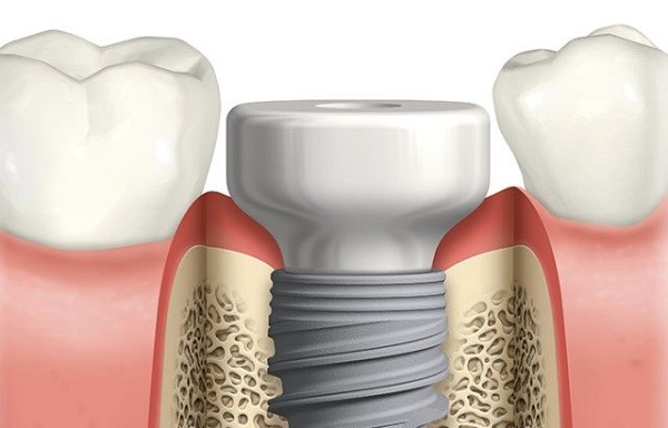 What are healing abutments (gingiva formers) and cover screws in implants? (63)