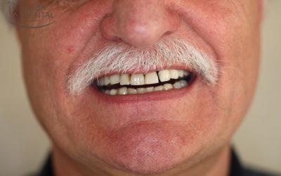 Fogágybeteg fogak eltávolítása és immediát ideiglenes fogsor készítése (esettanulmány)(19)