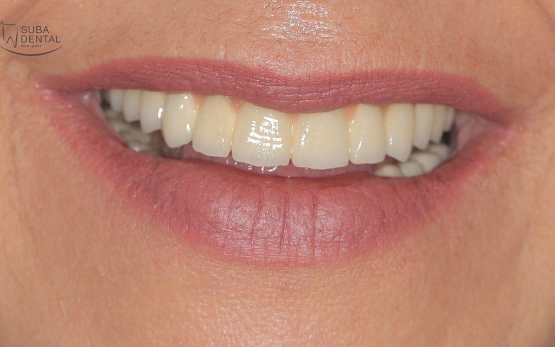Csavarozható vagy ragasztható implantátum koronát válasszak? (0)
