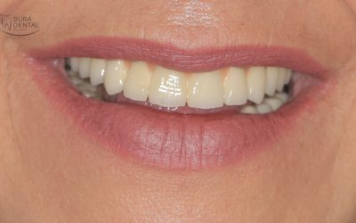 Shall I opt for a screw-retained or a cement-retained implant crown? (0)