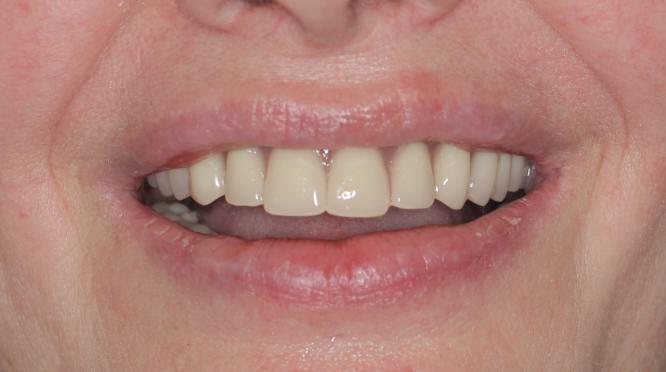 Les mâchoires complètement édentées et les prothèses dentaires posées sur les barres de retention et sur 4-4 implants