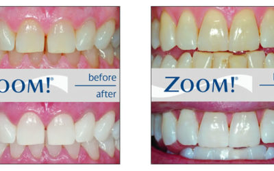 Professional Zoom teeth whitening