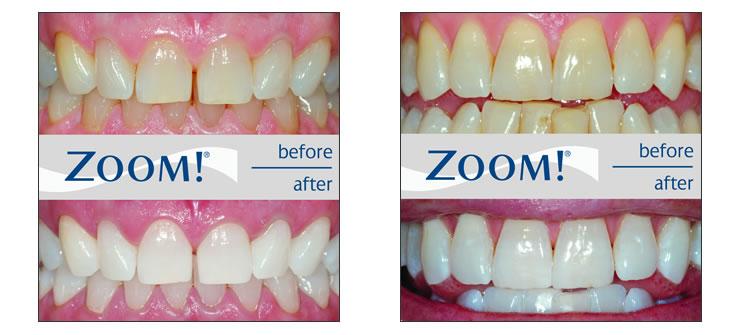 Professional Zoom Teeth Whitening Subadental