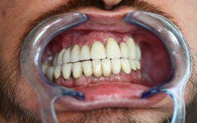 Implantátumok kilökődés és fogak elvesztése a rendszeres ellenőrzések, kontrollröntgenek és a rendszeres fogkő-eltávolítás hiánya, illetve az erős dohányzás miatt (esetteanulmány) (41)