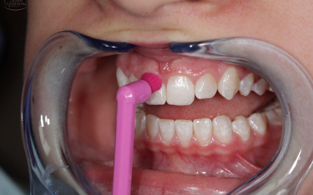 Nettoyage des couronnes et des ponts dentaires fixés sur des implants dentaires