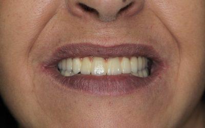 Ragasztható fémkerámia körhíd implantátumokon(esettanulmány)(30)