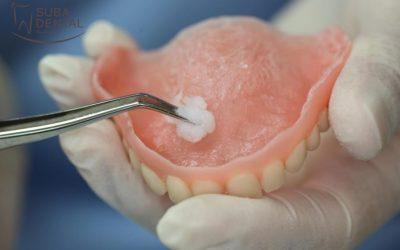 Kivehető fogsor alábélelése a fogorvosi rendelőben (34)