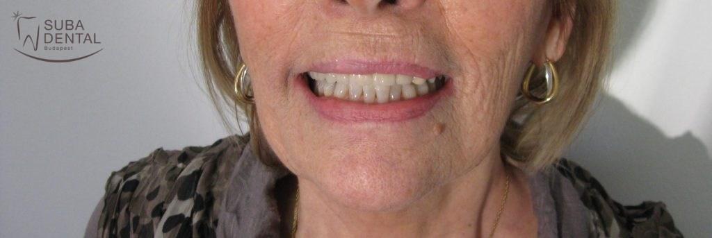 Fémkerámia híd saját fogakra (Esetbemutató) (33)