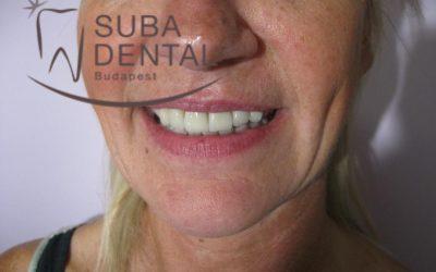 Cirkon körhíd saját fogakra, implantátummal pótolt foghiánnyal (Esetbemutató) (31)