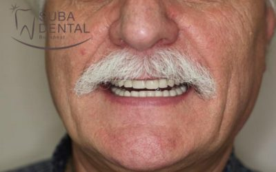 Fabrication of an upper denture for an edentulous maxilla and a lower bar-retained overdenture on 4 implants (Case presentation) (33b)