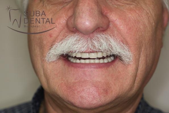 Felső kivehető teljes fogsor készítése fogatlan állcsontra, valamint alsó kivehető stéges fogsor készítése 4 db implantátumra (Esetbemutató) (33b)