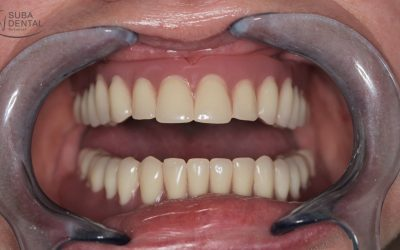 The cleaning of overdentures (false teeth)
