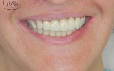 Felső kombinált fogsor, alsó fémkerámia körhíd (36) (Case presentation)