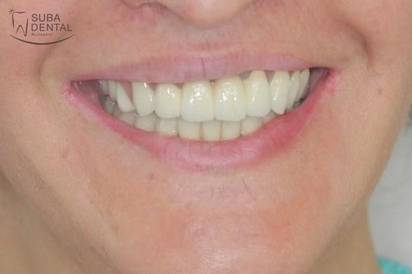 Upper combined denture, lower full-arch metal-ceramic bridge