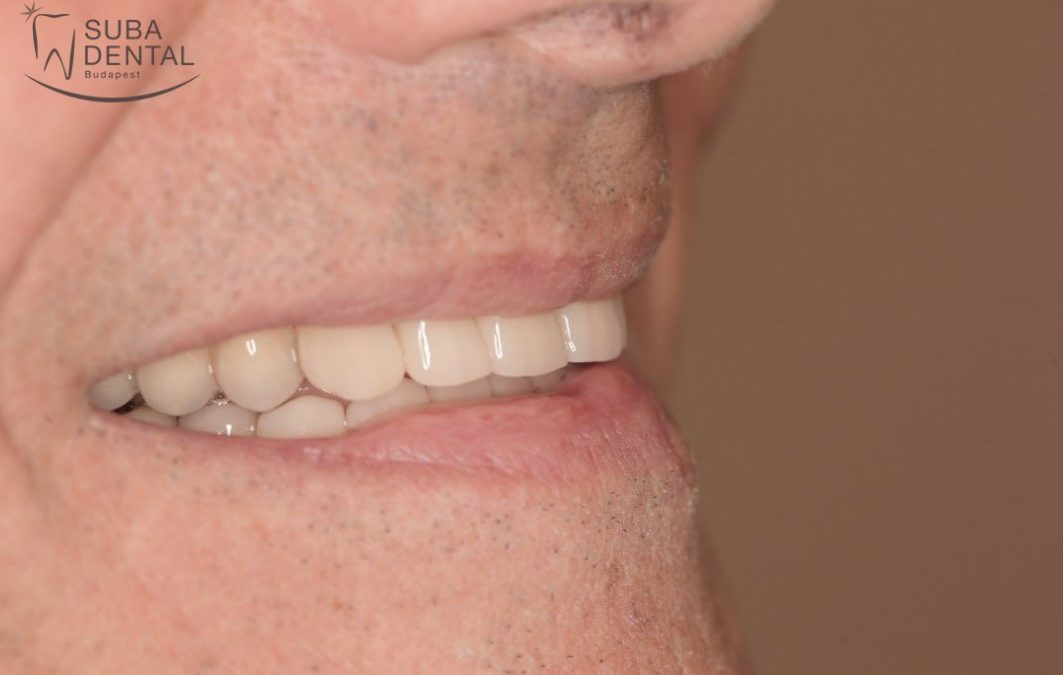 Aesthetic rehabilitation of cervical wear (abfraction) and diastema with E.max all-ceramic crowns (Case presentation) (47)