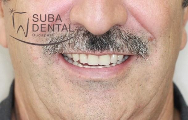Fogeltávolítás, 4 implantátumon elhorgonyzott stéges fogsor készítése (Esetbemutató) (61)