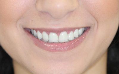 Shall we opt for full ceramic (e. g. E. Max) or zirconia crowns? (49)