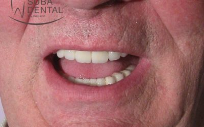 Restoration of aesthetics with metal-ceramic crowns (Case presentation) (58 )