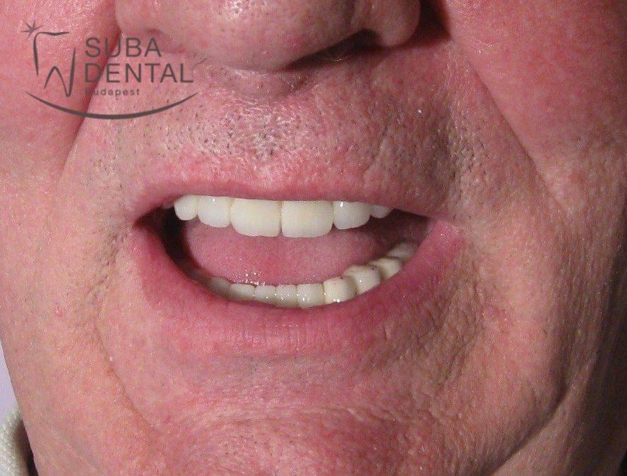Esztétikai rehabilitáció fémkerámia koronákkal (esetbemutató) (58)