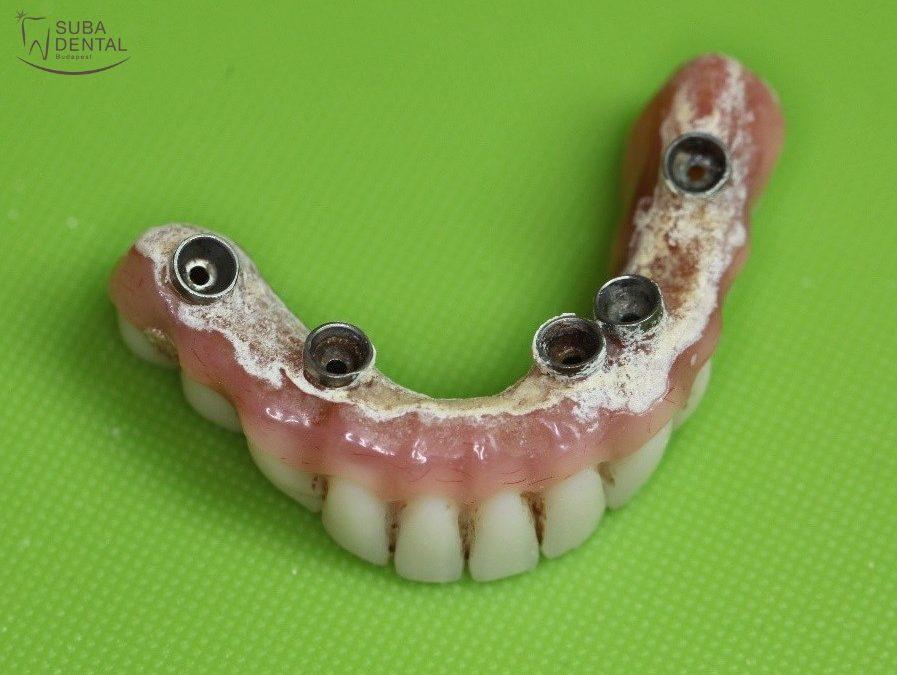 A rendszeres fogászati ellenőrzések fontossága (42)