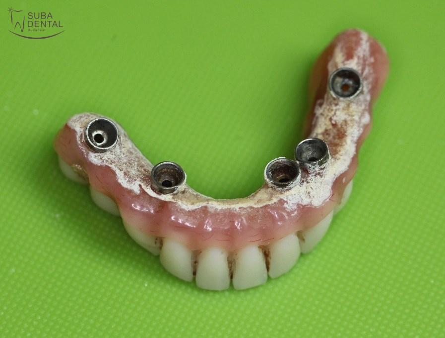 rossz leheletű implantátum