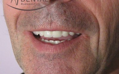 Bar-retained overdentures mounted on 4 implants for patients suffering from periodontal disease (Case presentation) (62 )