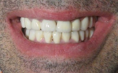 All-round functional and aesthetic rehabilitation Restoration of edentulisms and discoloration due to tetracycline and elimination of gaps between teeth (diastemata) with zirconia crowns (Case presentation) (64)