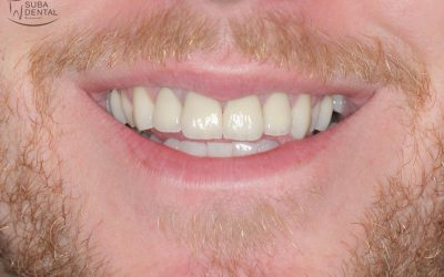 Aesthetic restoration of discoloured, root canal-treated front teeth with teeth whitening and zirconia crowns (Case presentation) (67)