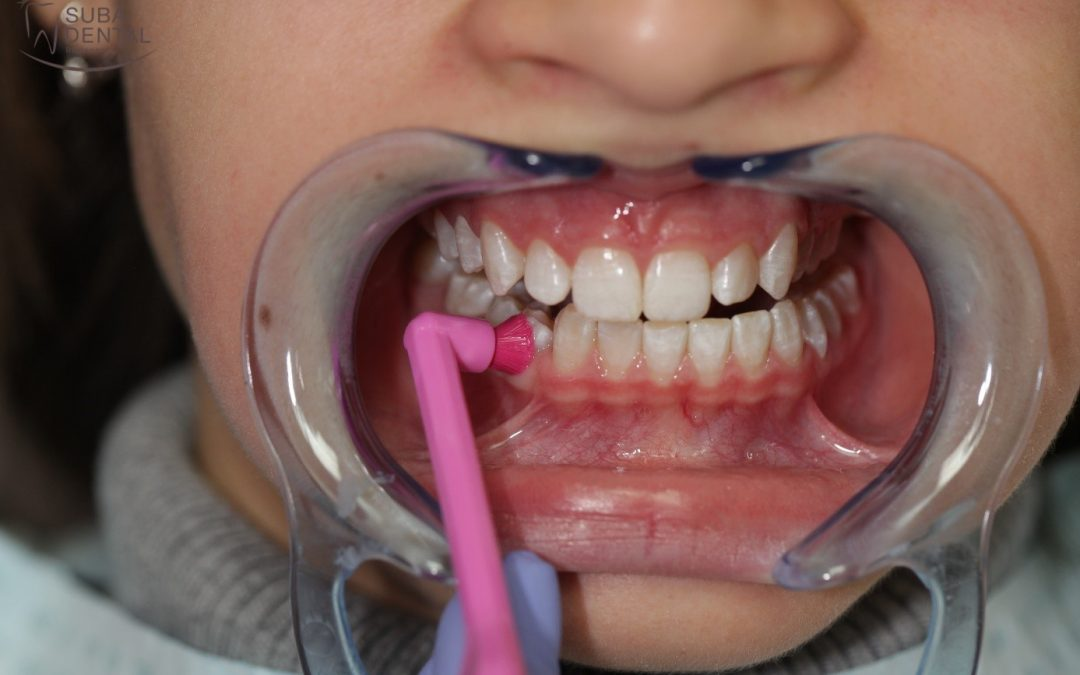 Az egycsomós fogkefe felhasználási területei és helyes használata