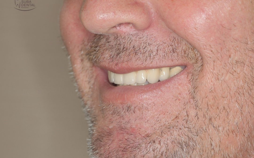 Removal of infected teeth, dental implant surgery, fabrication of metal-ceramic crowns, screw-retained metal-ceramic crowns borne by implants (Case presentation) (71)