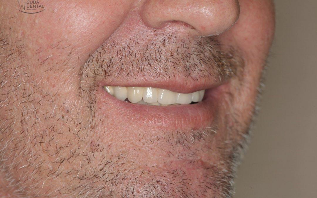 Gócos fogak eltávolítása, implantátum beültetése, fémkerámia körhíd és csavarozható implantátum koronák készítése (Esetbemutató) (72)