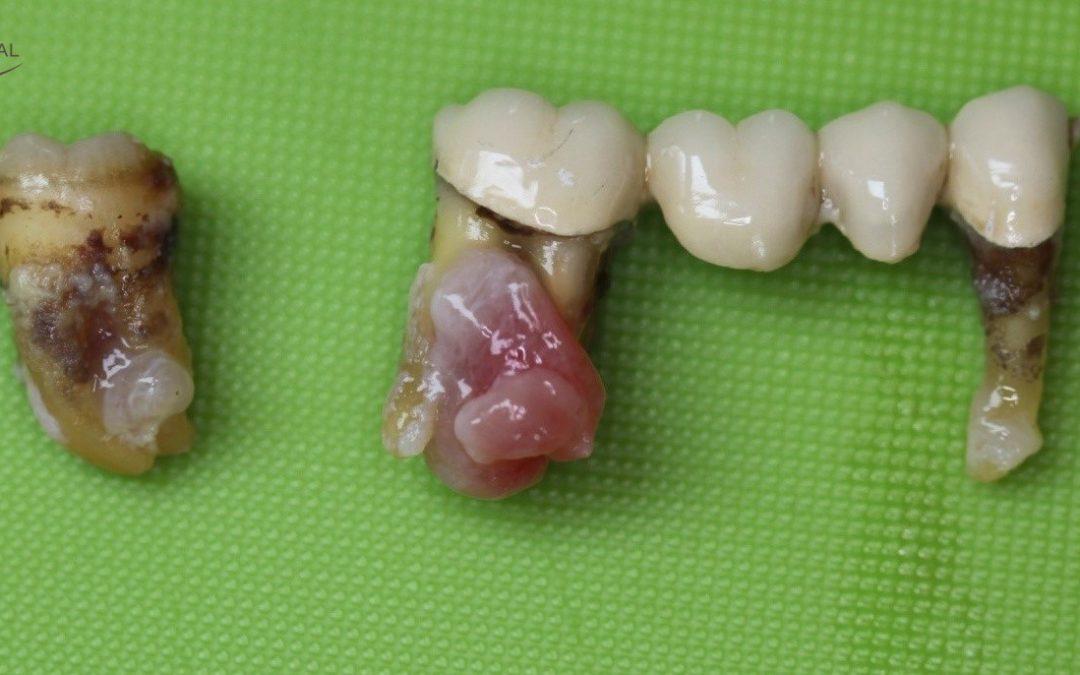 Dental foci
