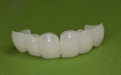 Mozgó fogak parodontális sínezése (84)