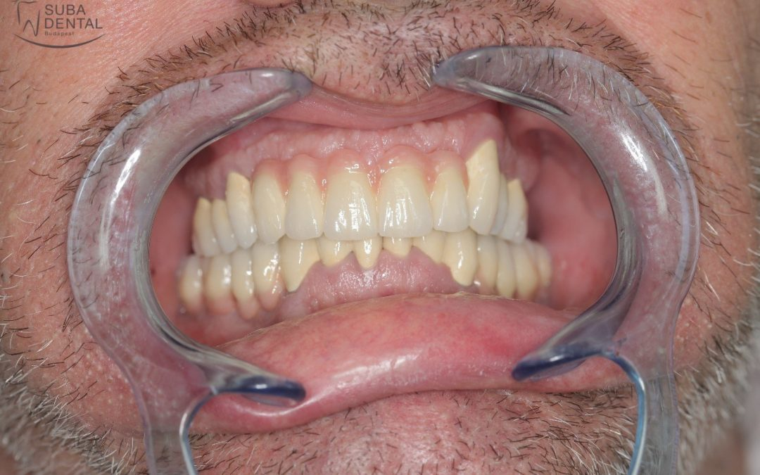 Elimination of dental foci, dental implant surgery, the fabrication of metal ceramic full-arch bridge and screw-retained implant crowns (Case presentation) (69)
