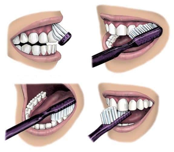 Soins bucco-dentaires efficaces