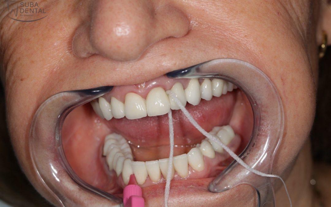 A Super floss fogselyem használata (82)