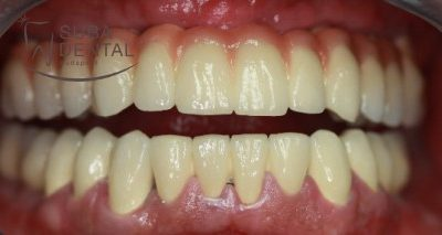 The relationship between dental foci, dental implant surgery and bone graft (76)