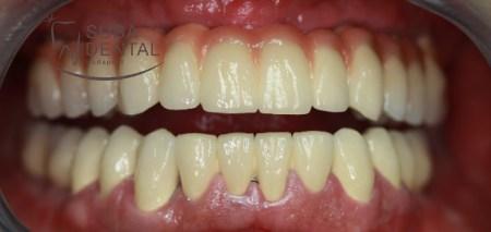La relation  entre des foyers dentaires et l'implantation et le remplacement osseux (76)
