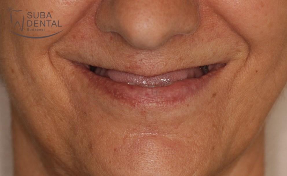 Hiányzó fogak pótlása implantátumokkal, fémkerámia koronák implantátumokra és saját fogakra I. kezelési fázis – fogbeültetés (esetbemutató) (91)