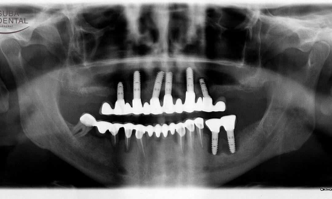 A dohányzás káros hatásai a fogakra és a szájüregre (88)